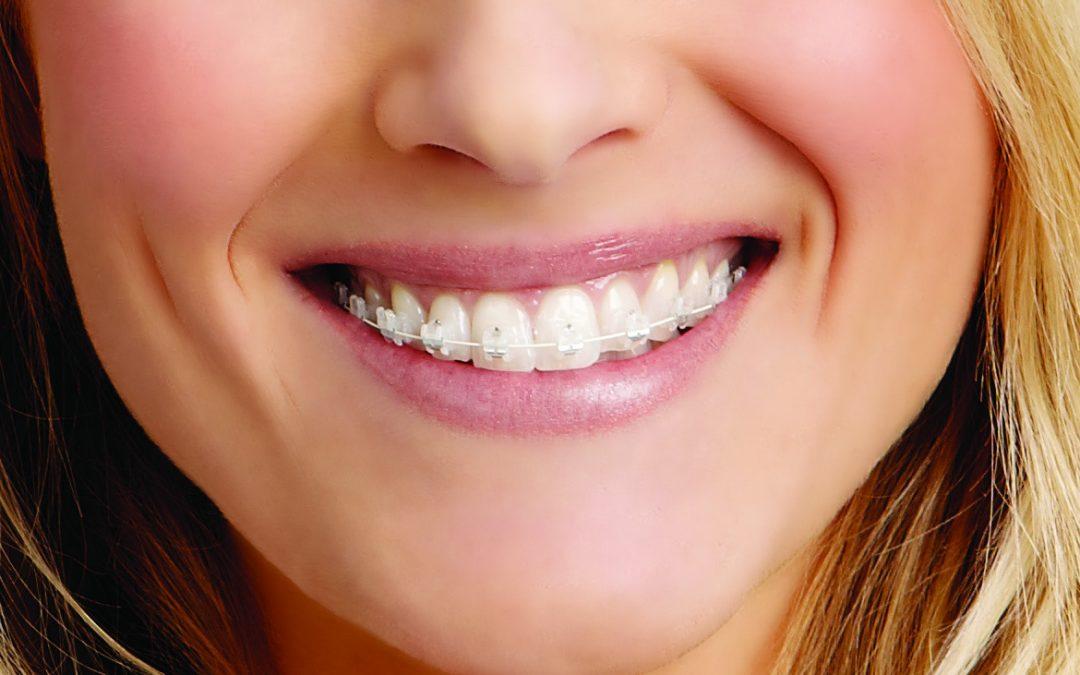 Aparate dentare transparente – o alegere mai subtila pentru un zambet mai frumos