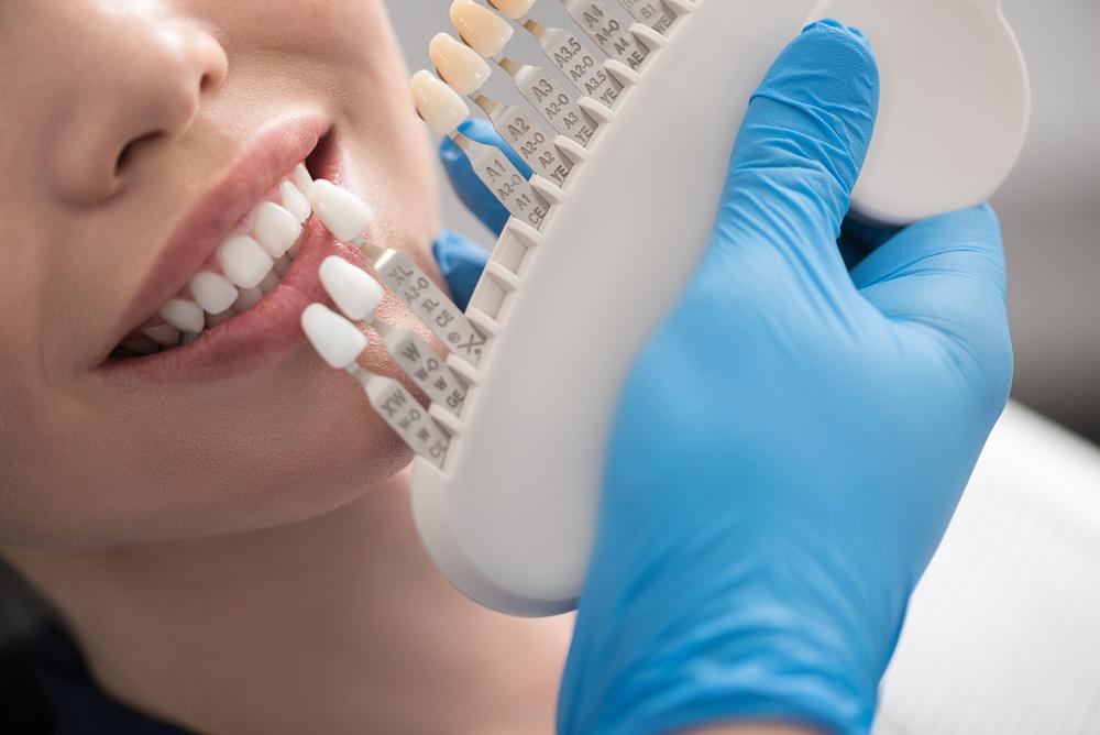 Coroana dentară – ce este, tipuri și implicații